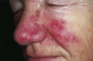 acne bumps