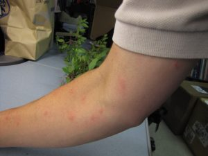 mosquito and insect bites